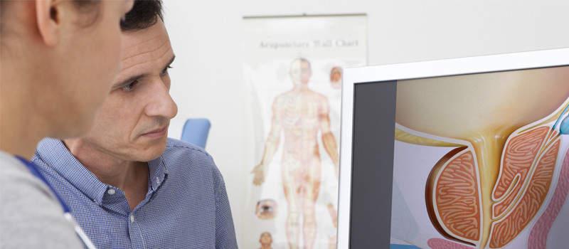Causes of benign prostatic hyperplasia image