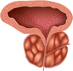 enlarged prostate image